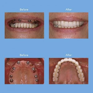 Dental implants advise from a professional