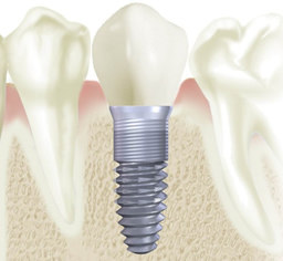 Cost Of Tooth Implant